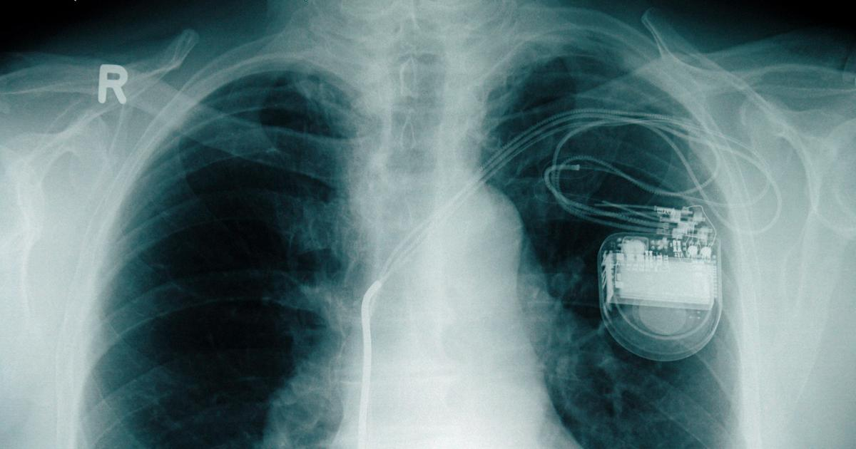 Rückruf Herzschrittmacher