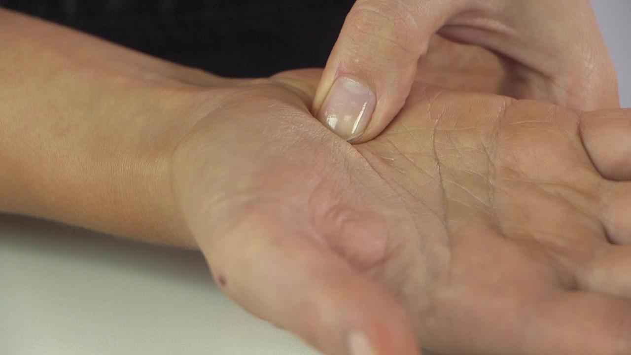 holzsplitter unterm fingernagel